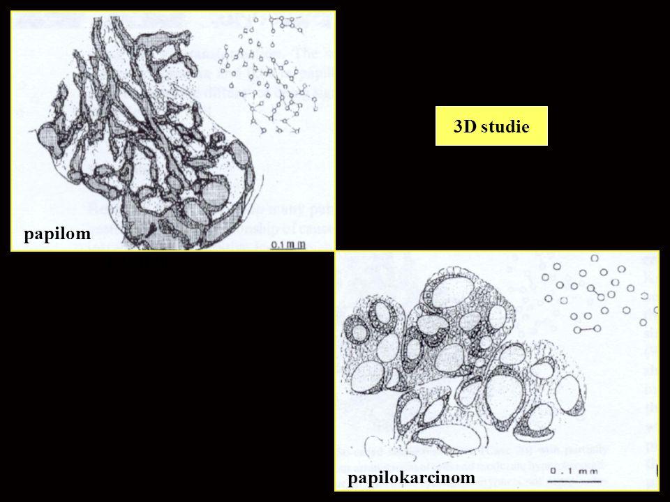 3D studie papilom papilom papilokarcinom