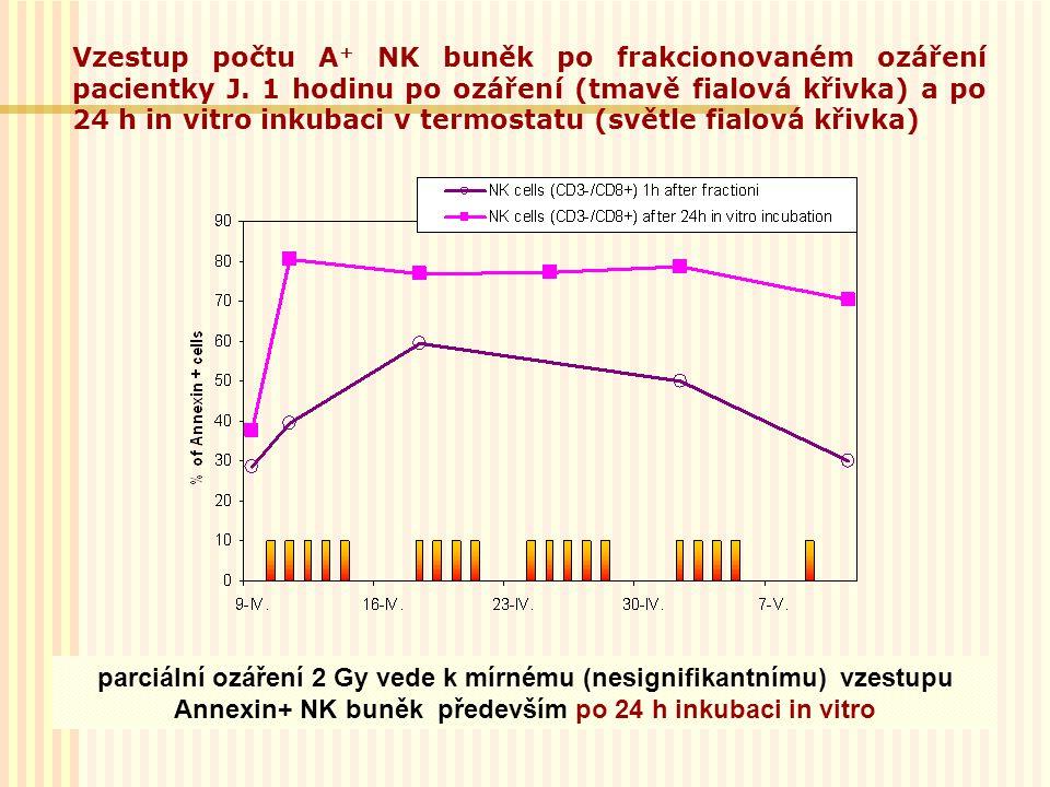 Vzestup počtu A+ NK buněk po frakcionovaném ozáření pacientky J