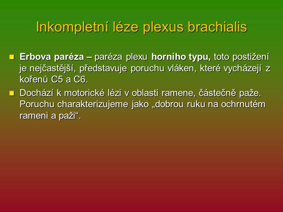 Inkompletní léze plexus brachialis