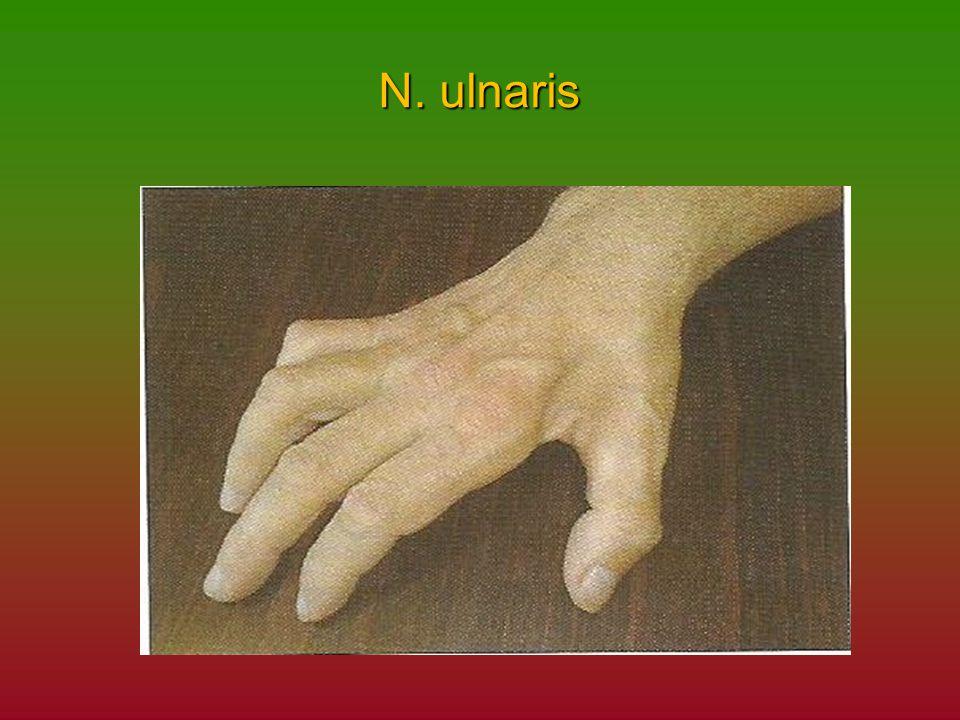 N. ulnaris