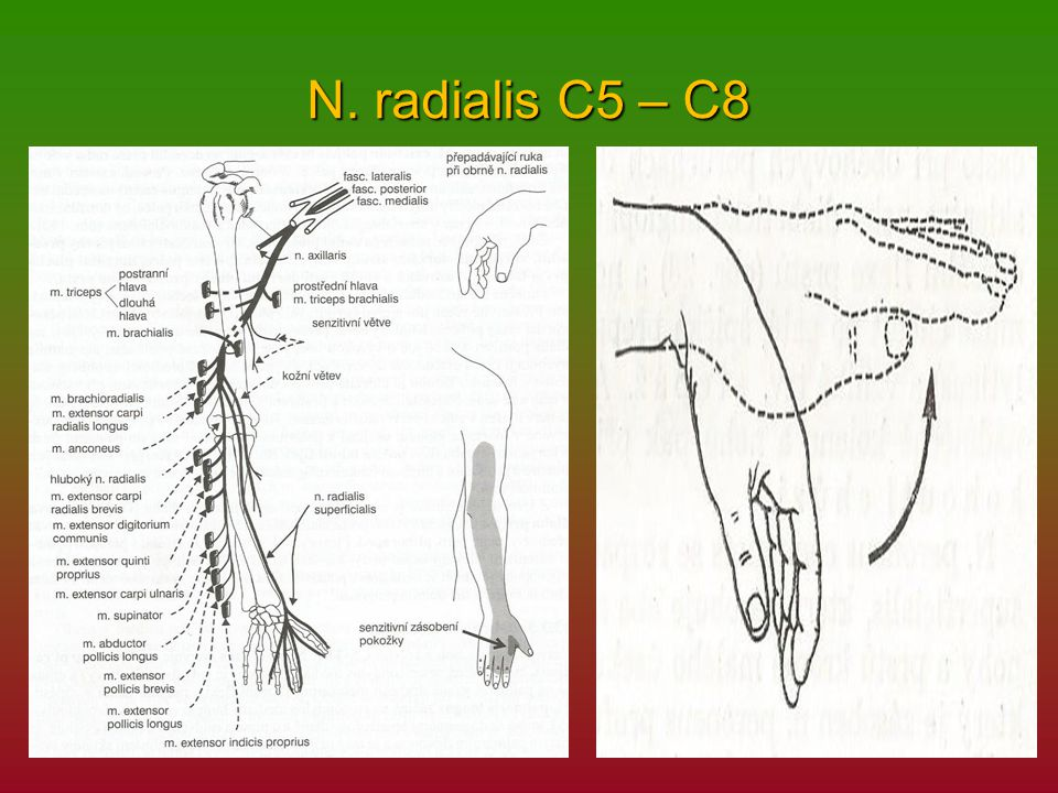 N. radialis C5 – C8