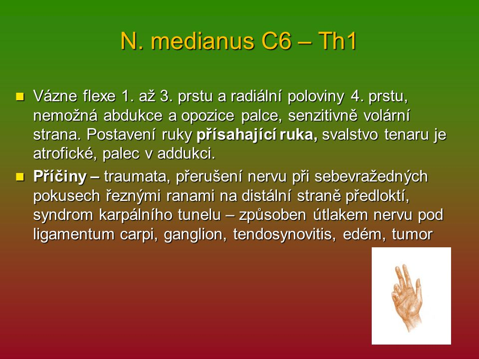 N. medianus C6 – Th1