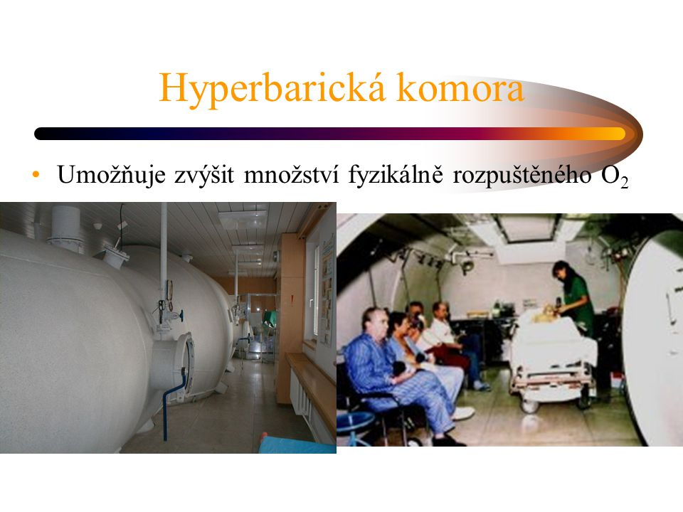 Hyperbarická komora Umožňuje zvýšit množství fyzikálně rozpuštěného O2