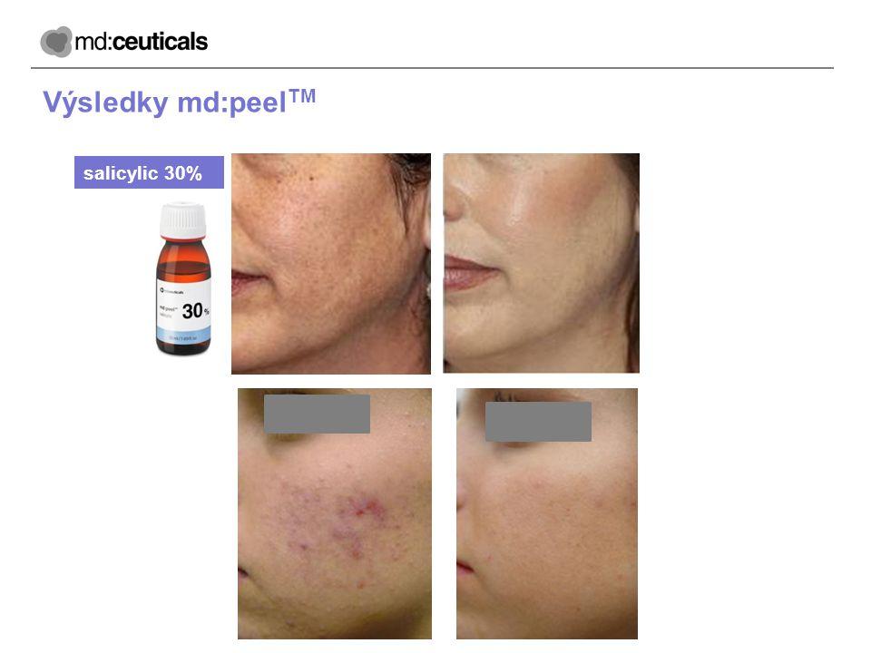 Výsledky md:peelTM salicylic 30%