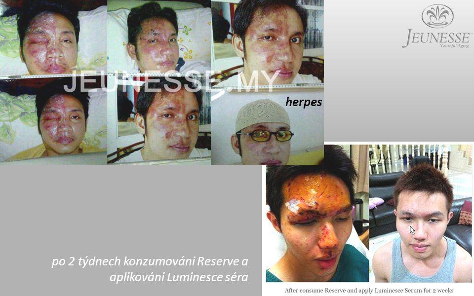 herpes po 2 týdnech konzumováni Reserve a aplikováni Luminesce séra