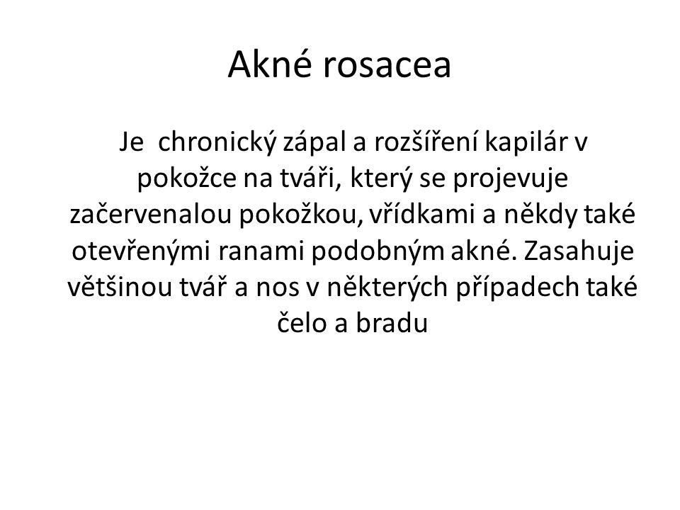 Akné rosacea