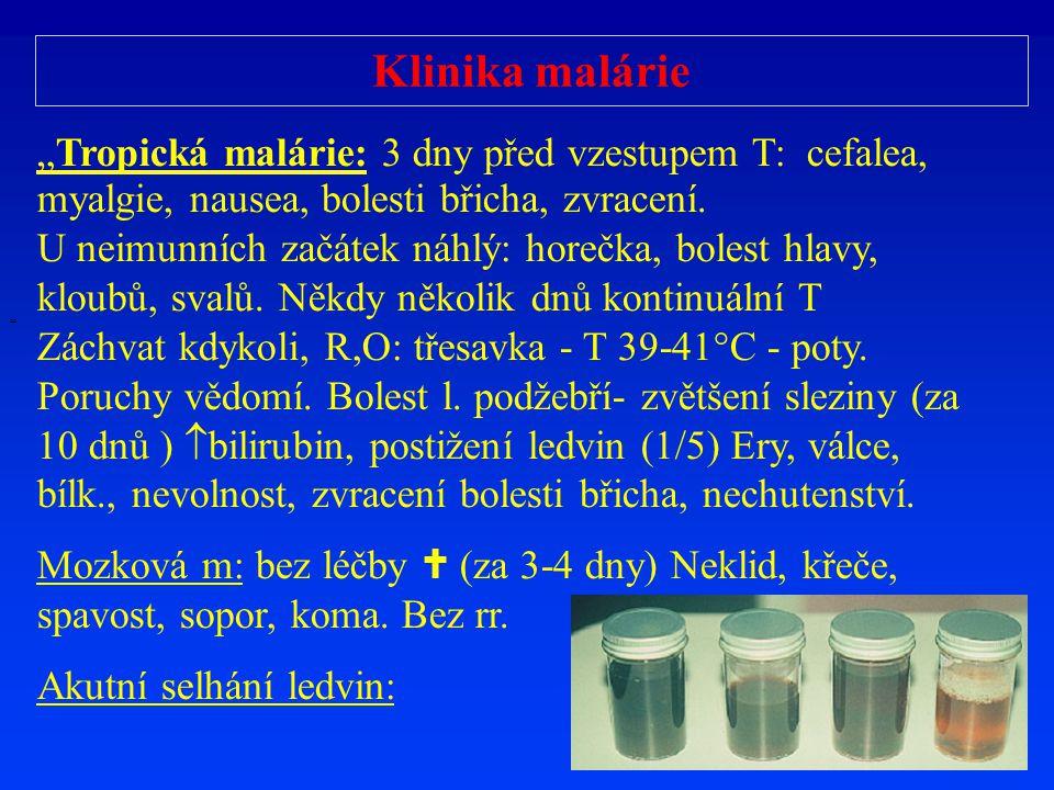 """Klinika malárie """"Tropická malárie: 3 dny před vzestupem T: cefalea, myalgie, nausea, bolesti břicha, zvracení."""
