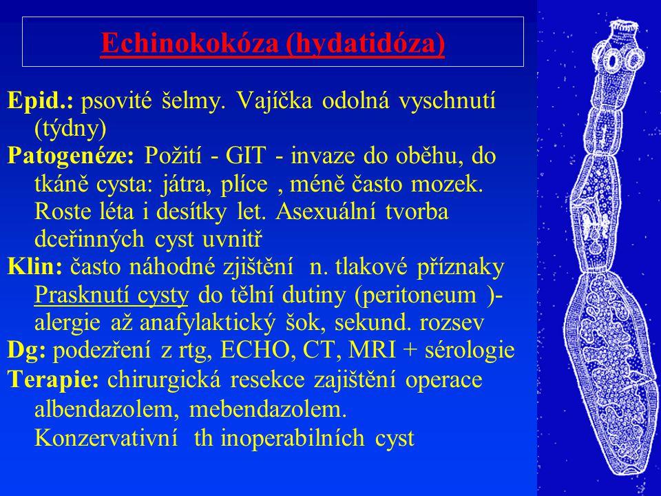 Echinokokóza (hydatidóza)