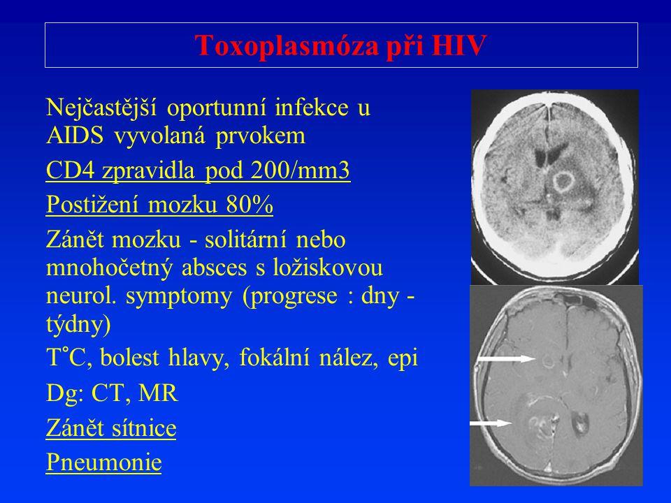 Toxoplasmóza při HIV Nejčastější oportunní infekce u AIDS vyvolaná prvokem. CD4 zpravidla pod 200/mm3.