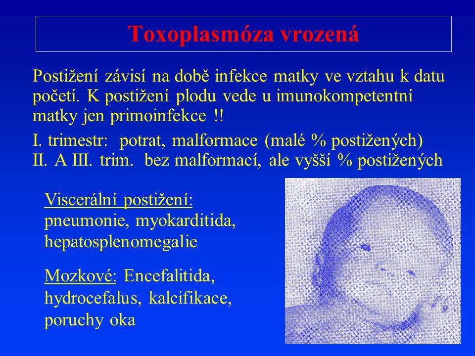 Toxoplasmóza vrozená