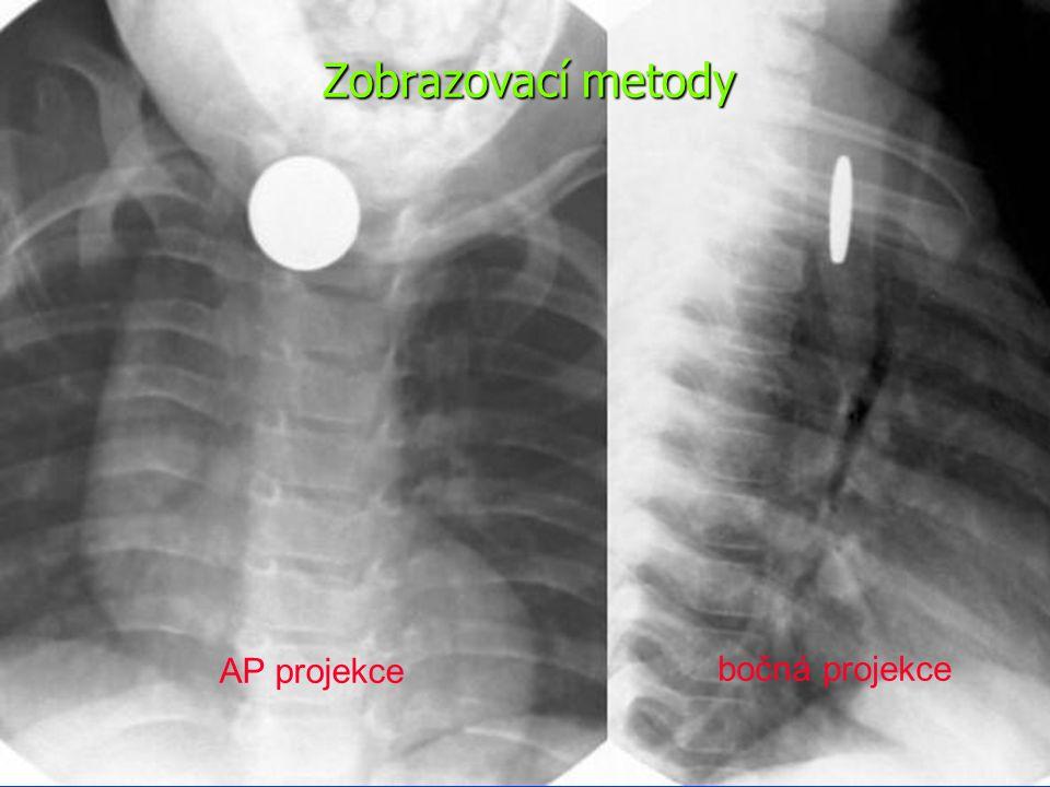 Zobrazovací metody RTG hrudníku, břicha Endoskopie