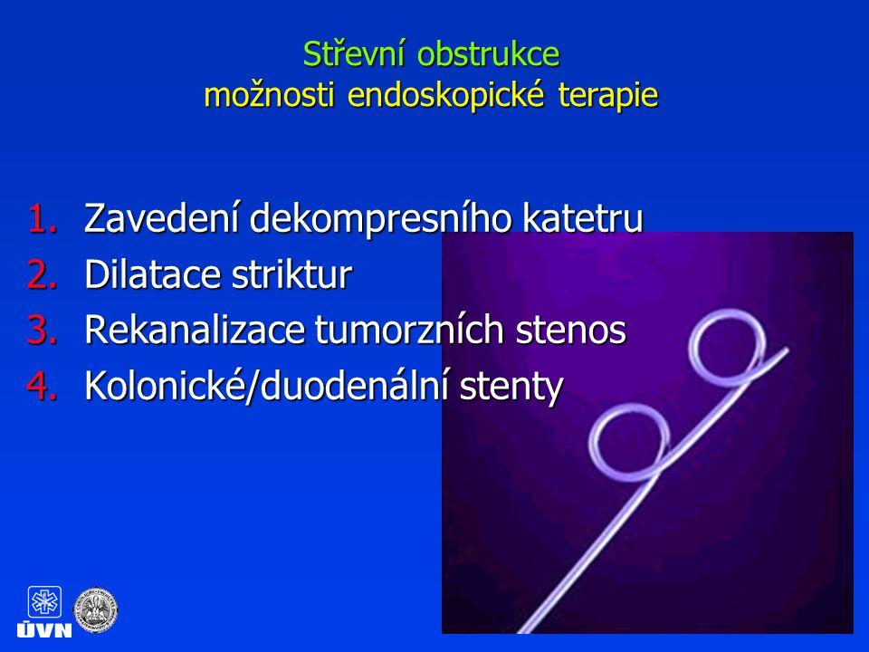 Střevní obstrukce možnosti endoskopické terapie