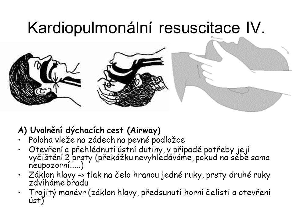 Kardiopulmonální resuscitace IV.