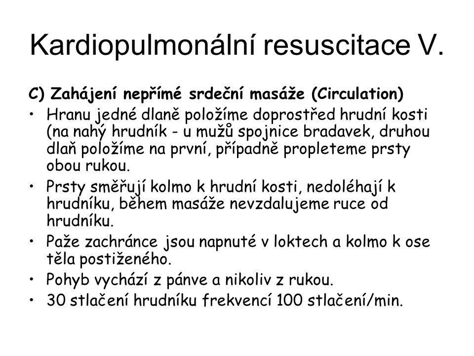 Kardiopulmonální resuscitace V.