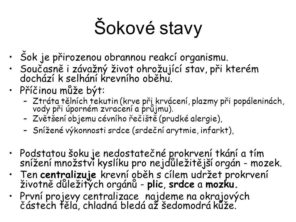Šokové stavy Šok je přirozenou obrannou reakcí organismu.