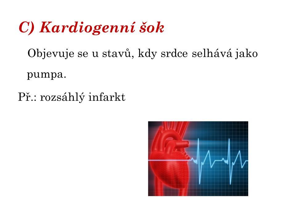 C) Kardiogenní šok Objevuje se u stavů, kdy srdce selhává jako pumpa.