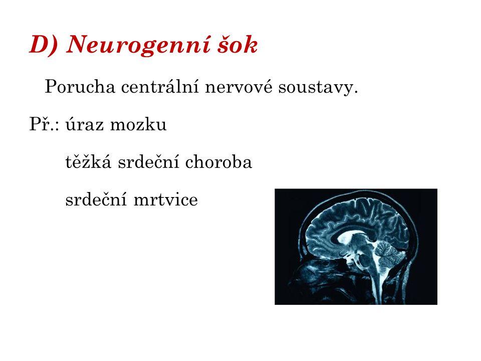 D) Neurogenní šok Porucha centrální nervové soustavy. Př.: úraz mozku