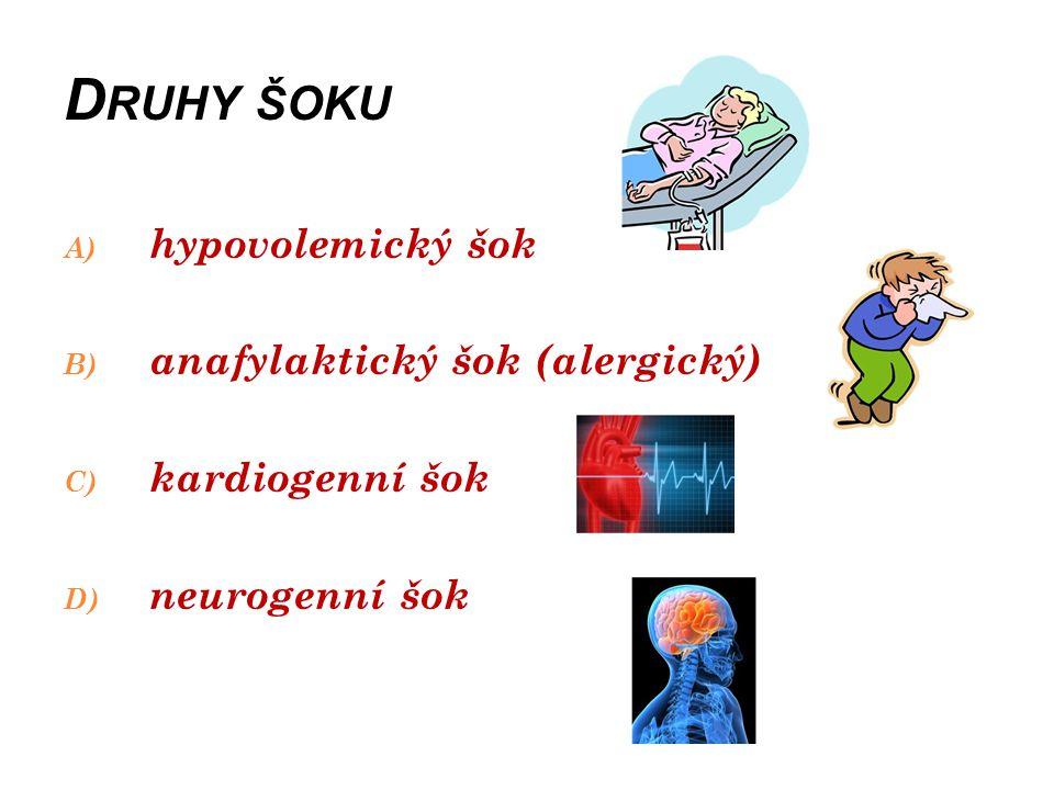 Druhy šoku hypovolemický šok anafylaktický šok (alergický)