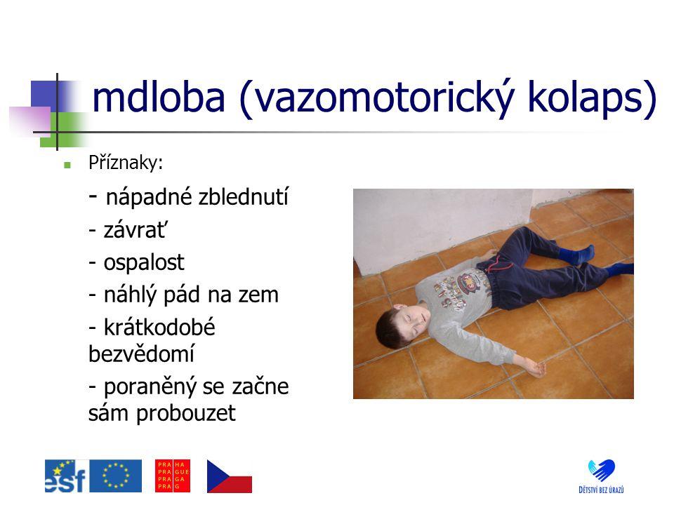 mdloba (vazomotorický kolaps)