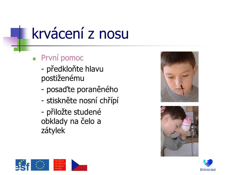 krvácení z nosu První pomoc - předkloňte hlavu postiženému