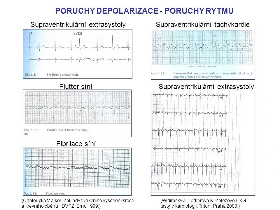 PORUCHY DEPOLARIZACE - PORUCHY RYTMU