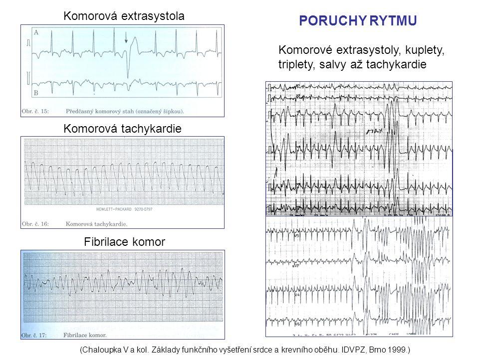 PORUCHY RYTMU Komorová extrasystola