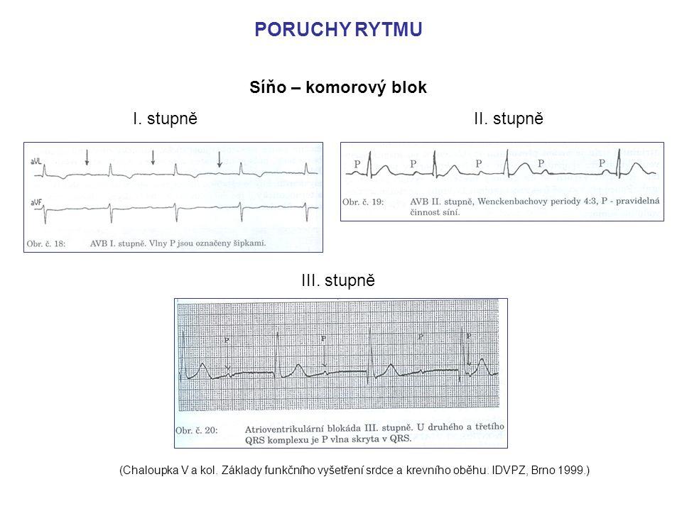 PORUCHY RYTMU Síňo – komorový blok I. stupně II. stupně III. stupně