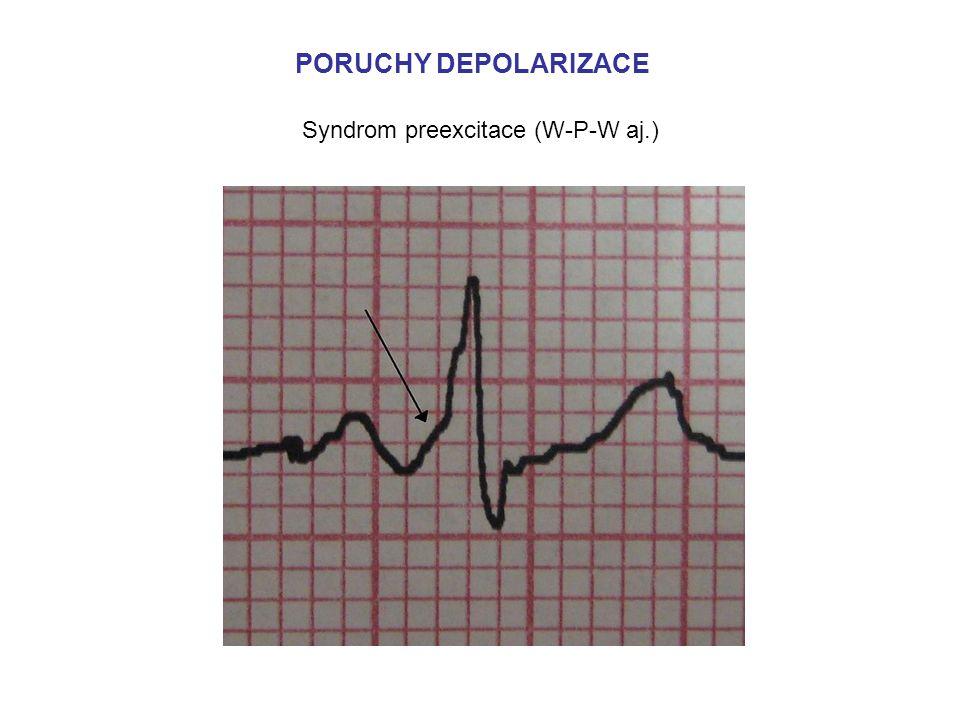 Syndrom preexcitace (W-P-W aj.)
