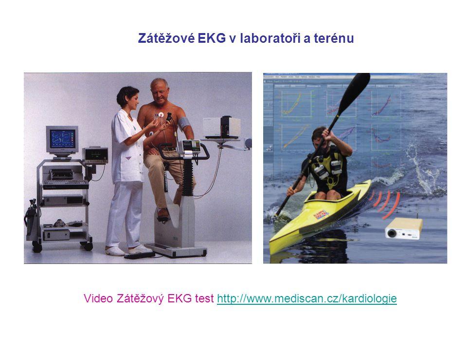 Zátěžové EKG v laboratoři a terénu