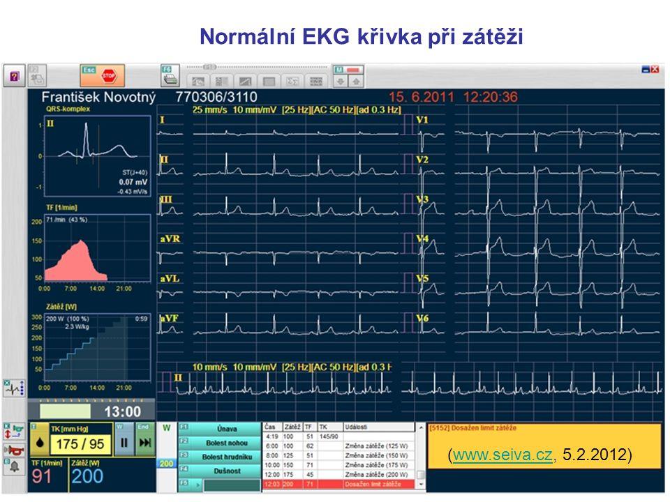 Normální EKG křivka při zátěži