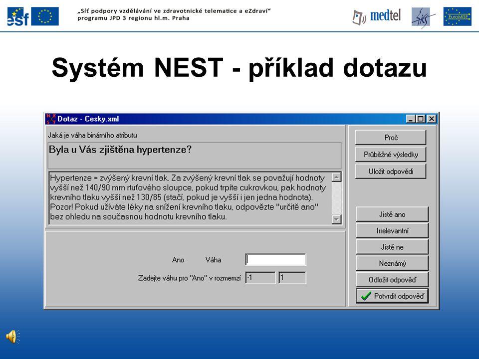 Systém NEST - příklad dotazu