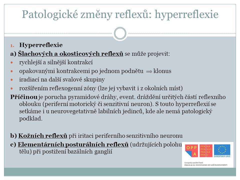 Patologické změny reflexů: hyperreflexie