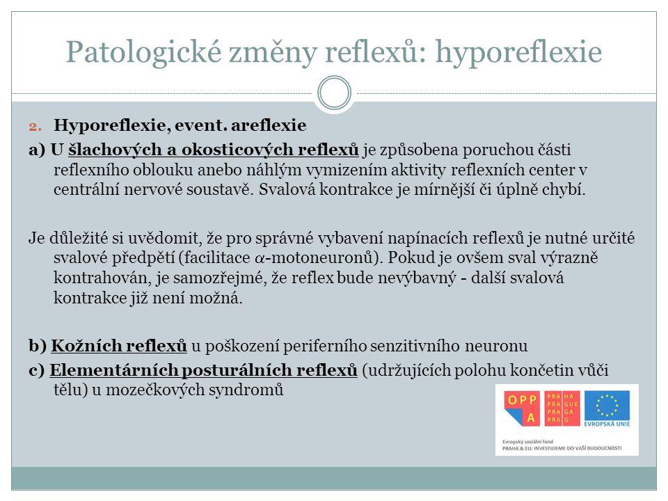 Patologické změny reflexů: hyporeflexie