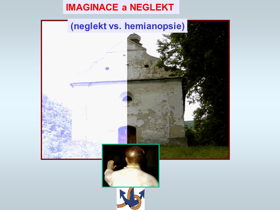 IMAGINACE a NEGLEKT (neglekt vs. hemianopsie)