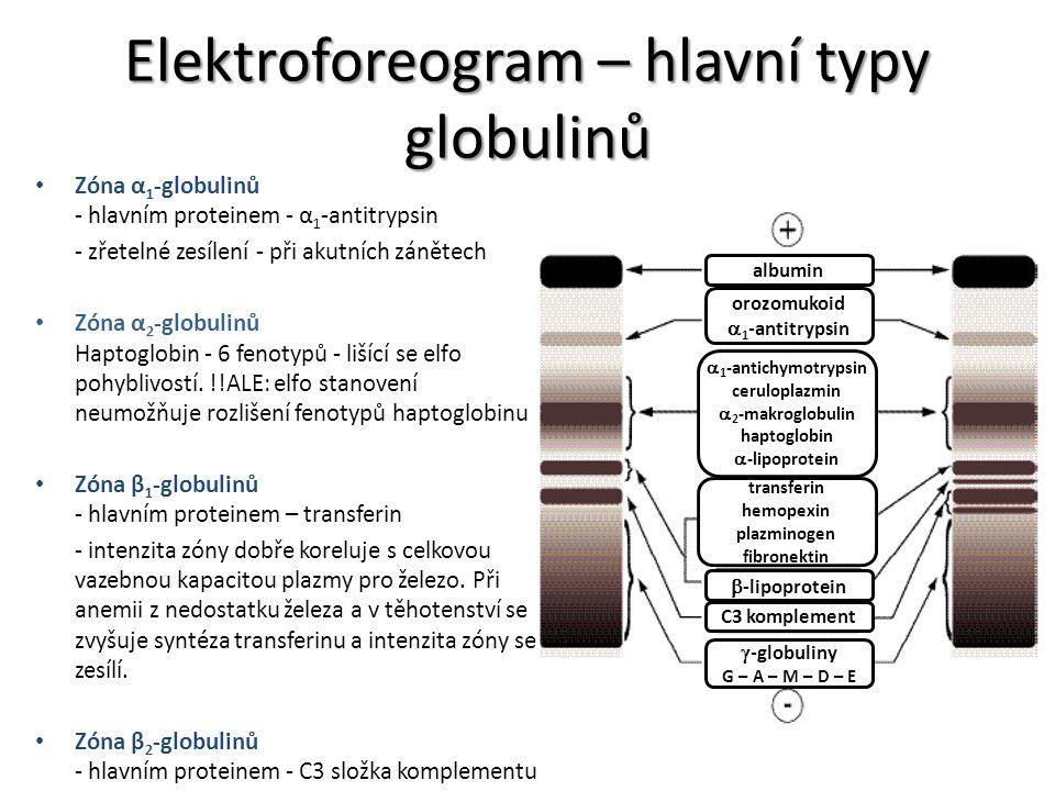 Elektroforeogram – hlavní typy globulinů