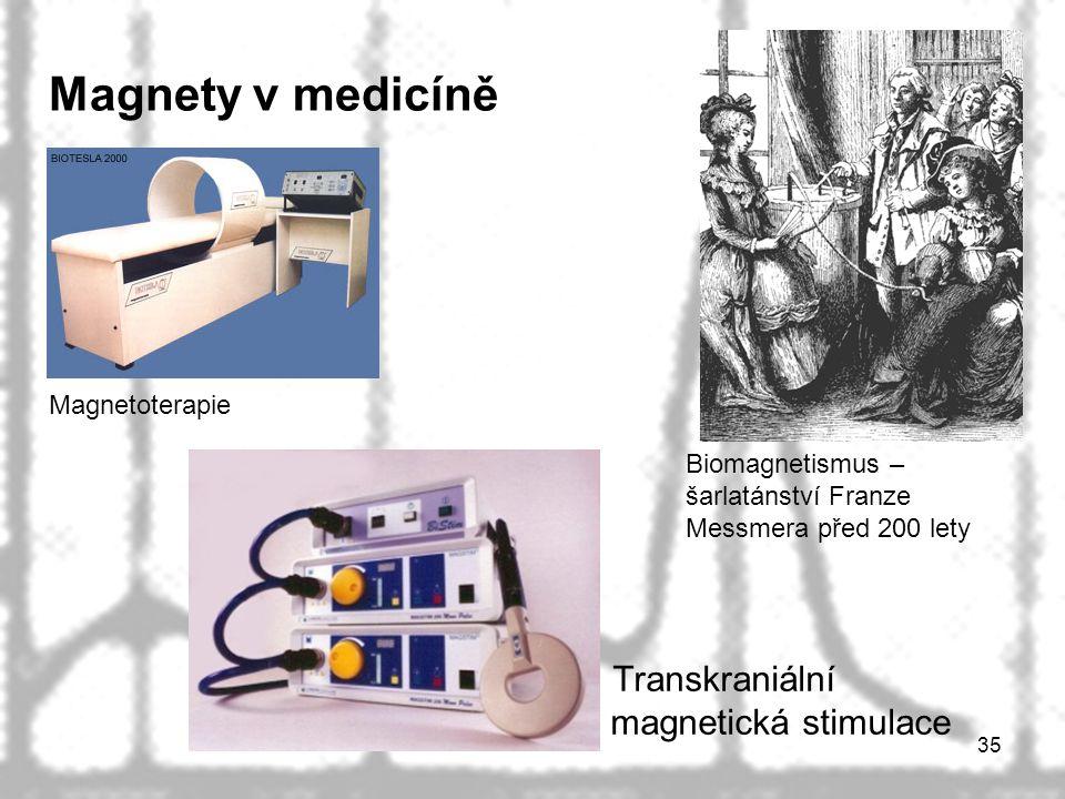 Magnety v medicíně Transkraniální magnetická stimulace Magnetoterapie