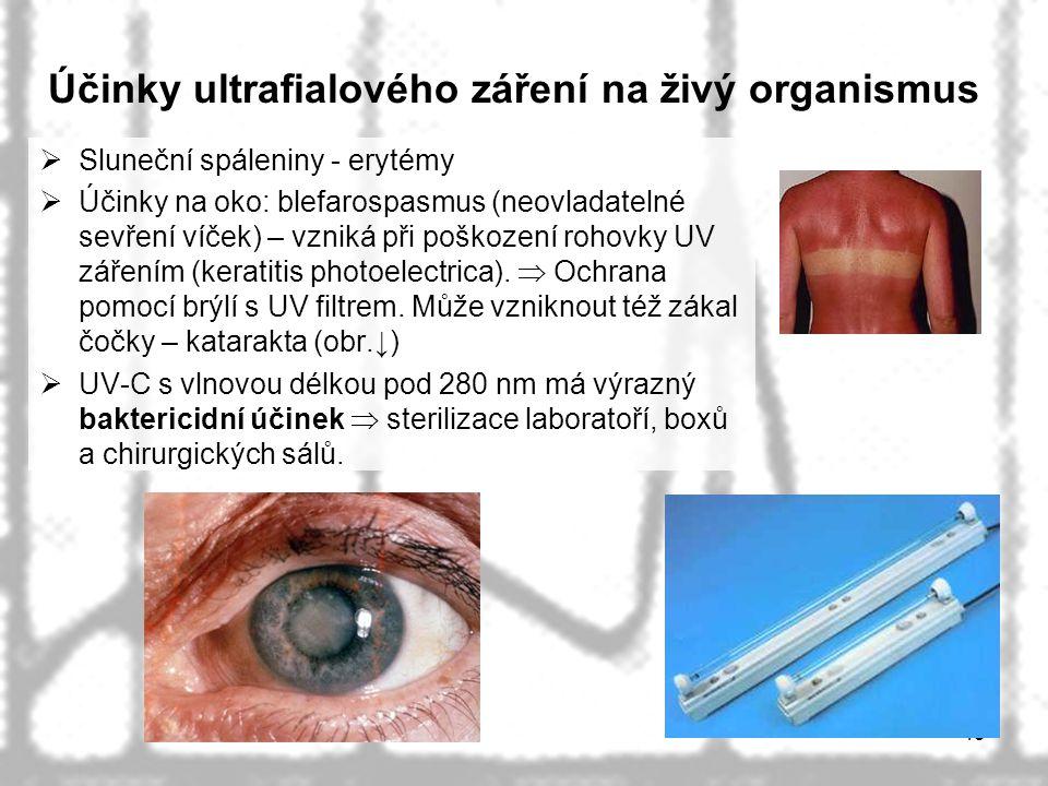 Účinky ultrafialového záření na živý organismus