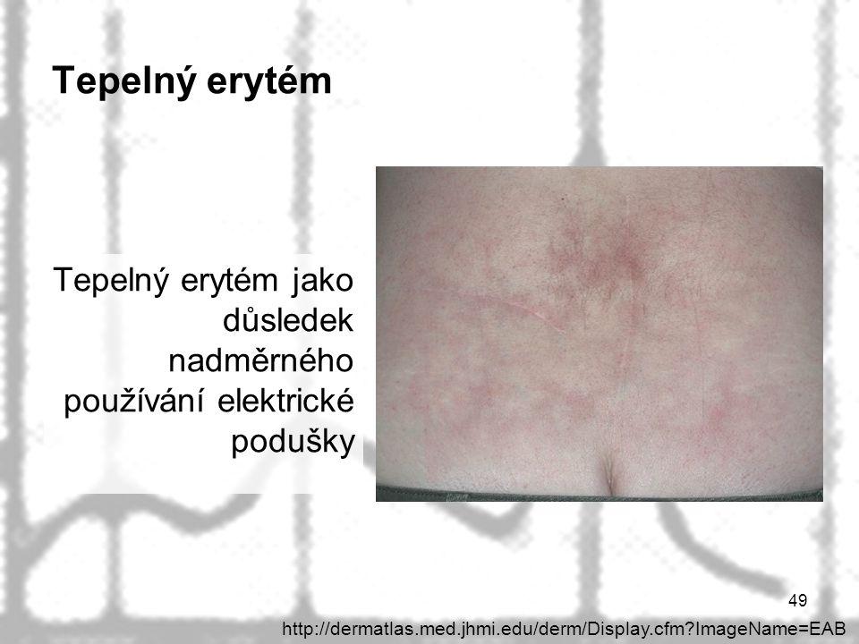 Tepelný erytém Tepelný erytém jako důsledek nadměrného používání elektrické podušky.