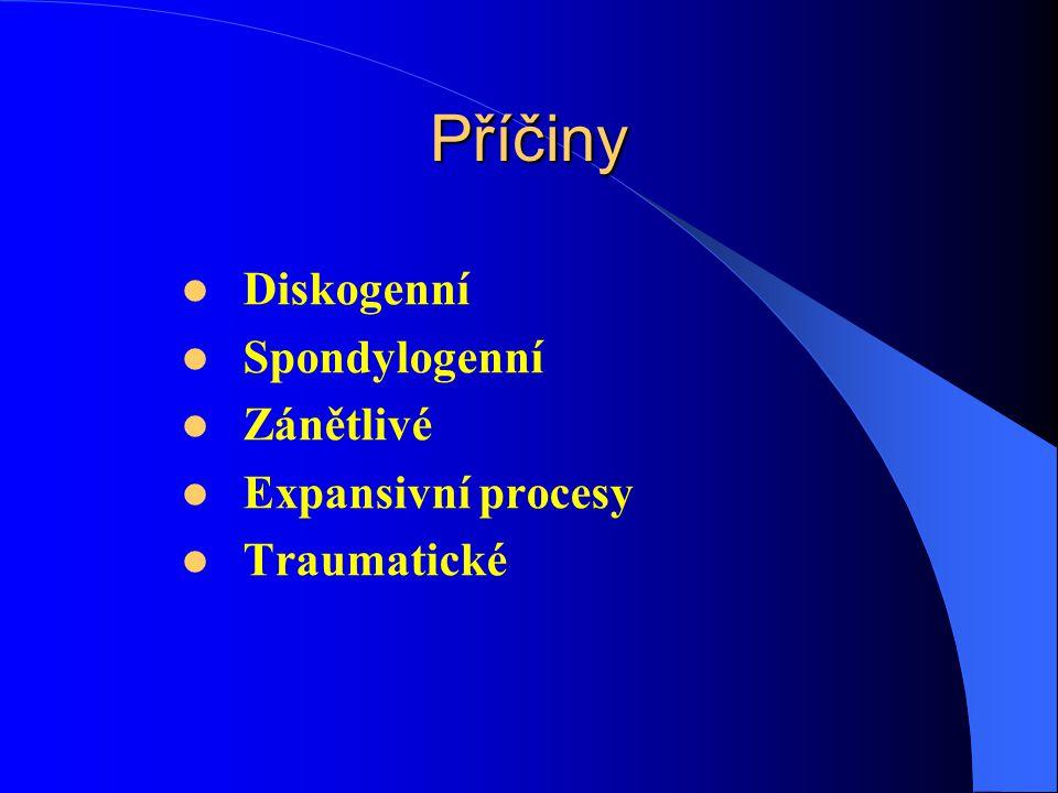 Příčiny Diskogenní Spondylogenní Zánětlivé Expansivní procesy