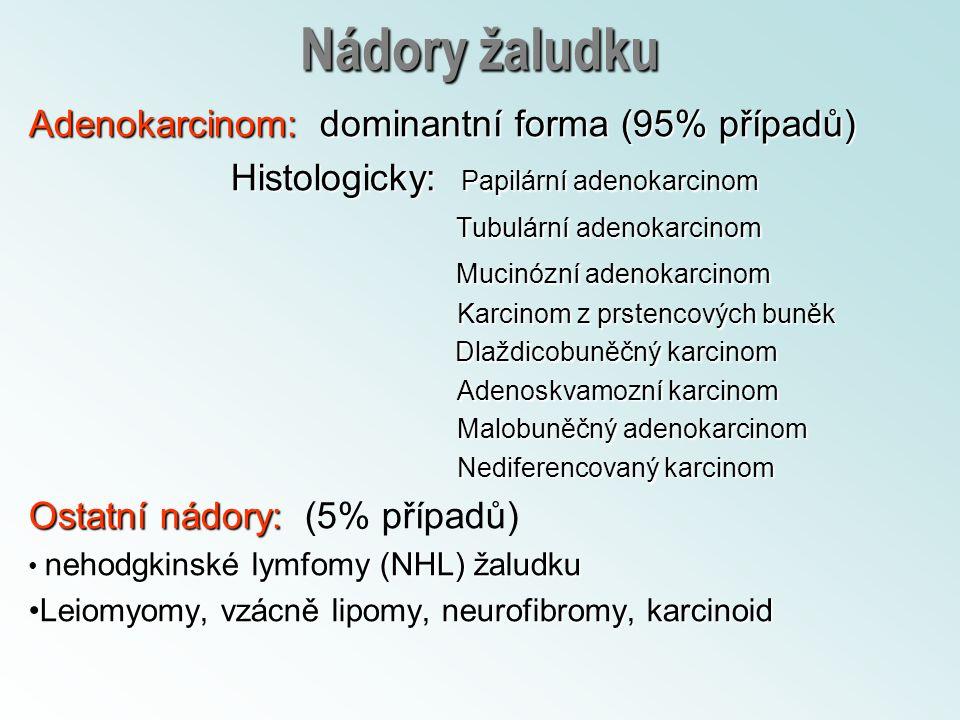 Nádory žaludku Adenokarcinom: dominantní forma (95% případů)