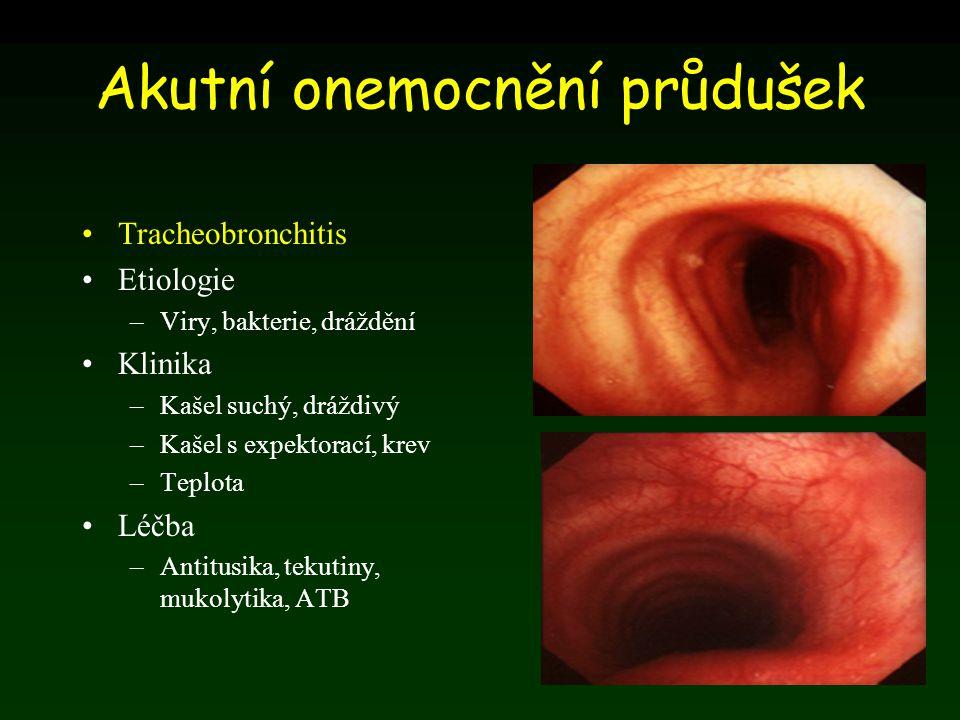 Akutní onemocnění průdušek