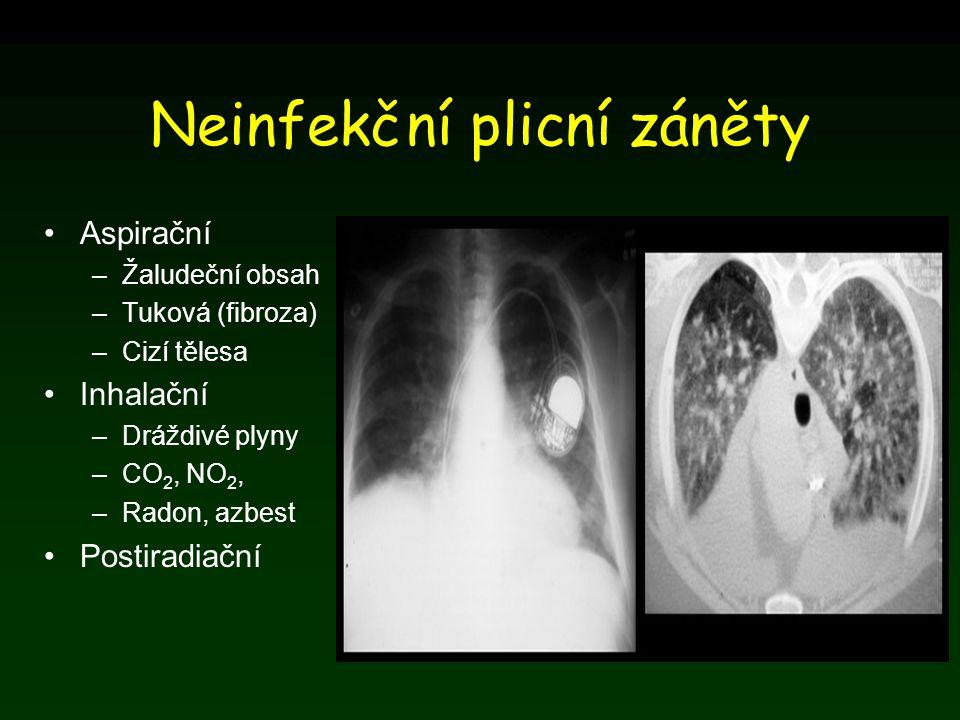 Neinfekční plicní záněty