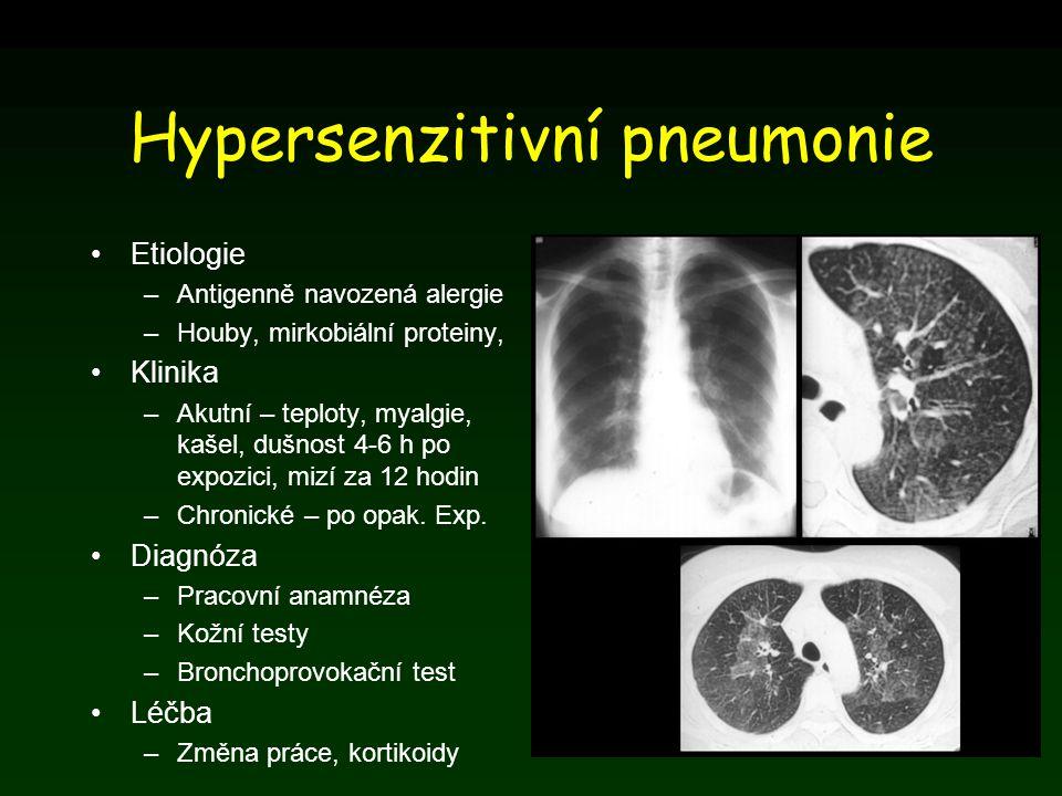 Hypersenzitivní pneumonie