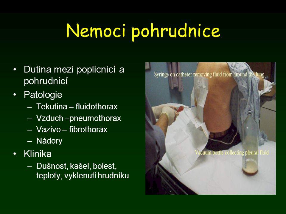 Nemoci pohrudnice Dutina mezi poplicnicí a pohrudnicí Patologie