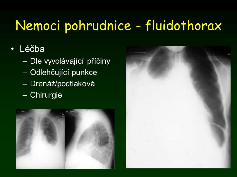 Nemoci pohrudnice - fluidothorax