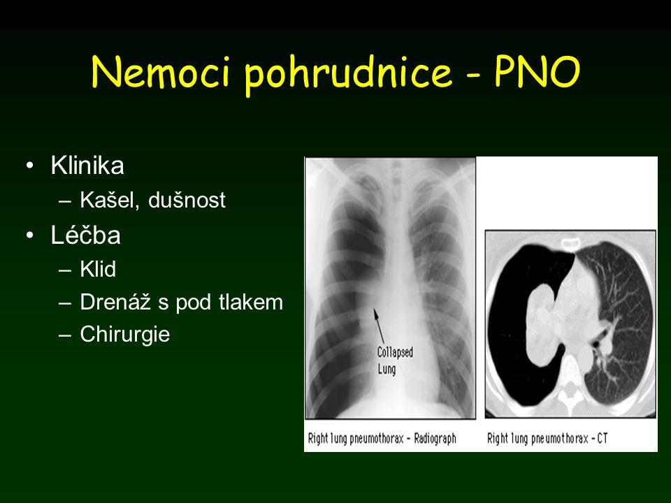 Nemoci pohrudnice - PNO