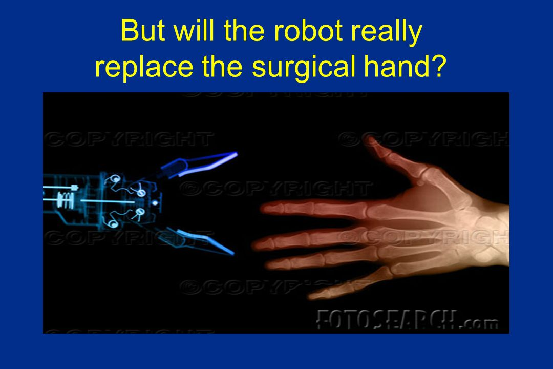 But will the robot really replace the surgical hand