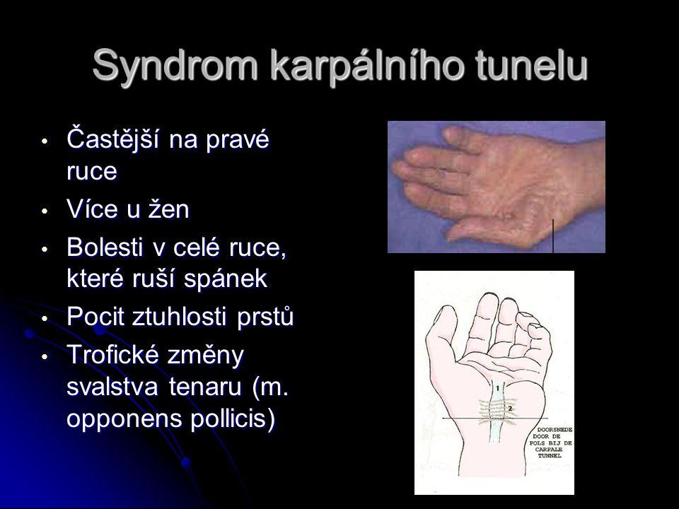 Syndrom karpálního tunelu