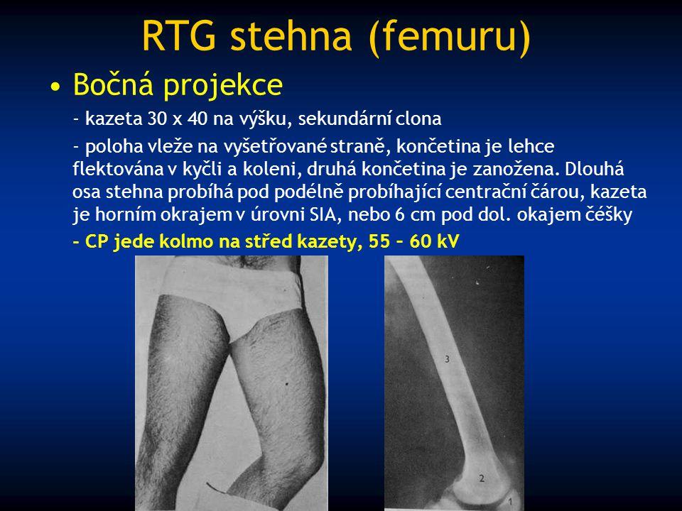 RTG stehna (femuru) Bočná projekce