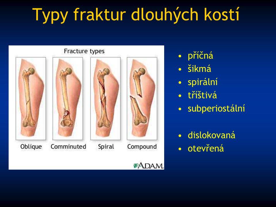 Typy fraktur dlouhých kostí